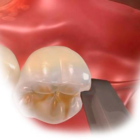 Схематичное изображение разреза десны при закрытом синус-лифтинге