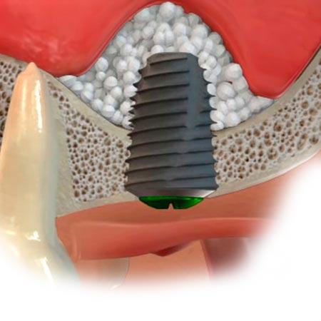 Схематичное изображение установки мпланта при закрытом синус-лифтинге
