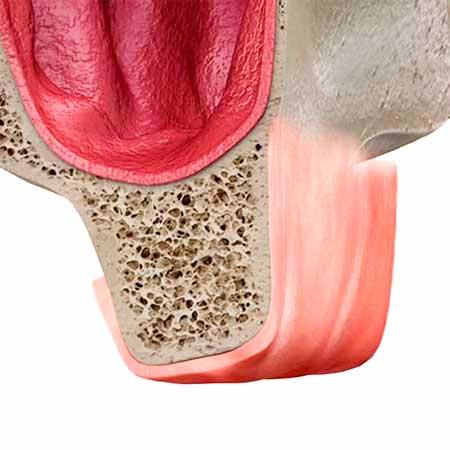 Изображение ушитой десны и сформированной костной ткани после открытого синус-лифтинга