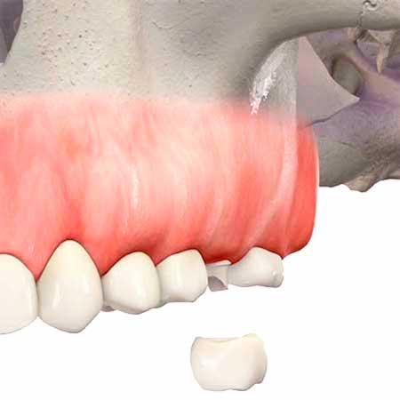 Изображение протезирования зуба после синус-лифтинга и имплантации
