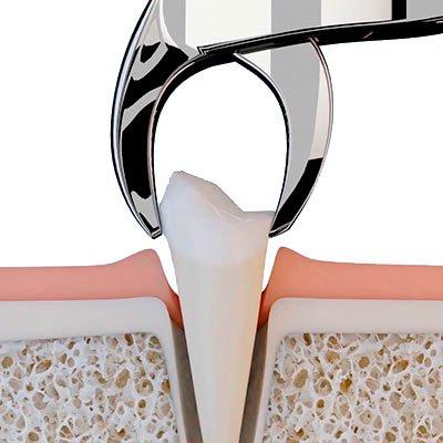 атравматичное удаление зуба