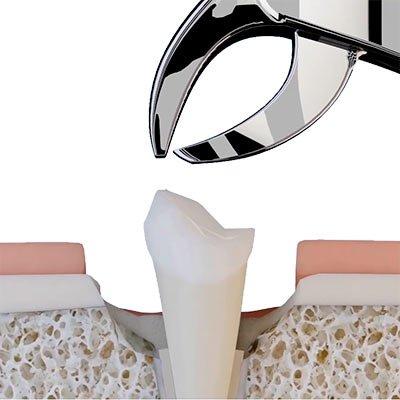 обычное удаление зуба